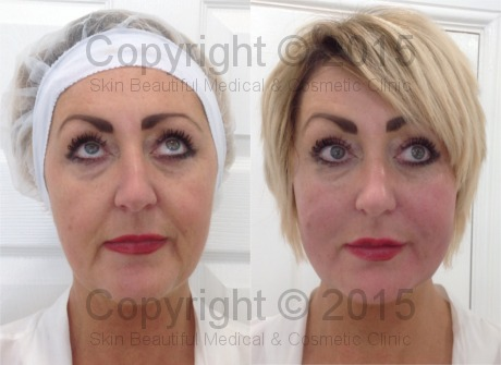 PDO thread face lift by Helen Bowes