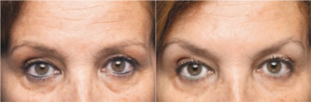 Eyebrow lift before and after Botox treatment