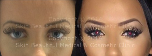 Eyebrow lift (Riah Reed) by Helen Bowes