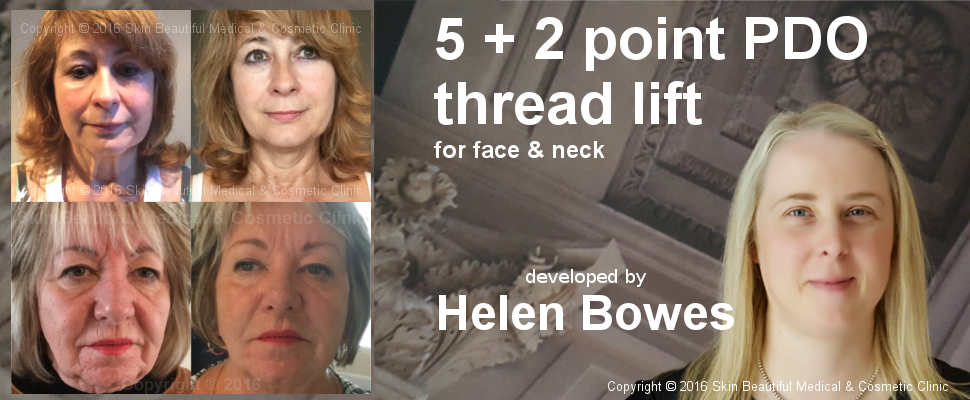5 + 2 Point PDO thread liftd developed by Helen Bowes